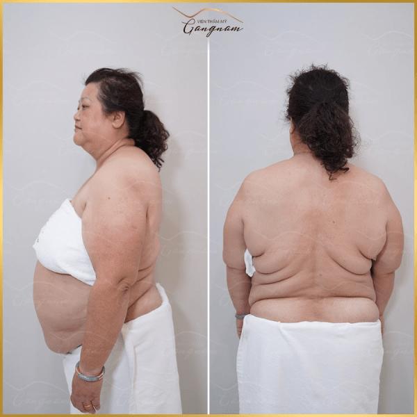 Top địa chỉ thẩm mỹ viện có dịch vụ giảm béo uy tín