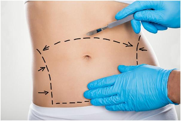 Quy trình phẫu thuật hút mỡ bụng chuyên nghiệp, an toàn